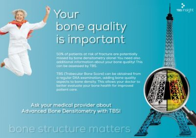 TBS iNsight - Poster for patients