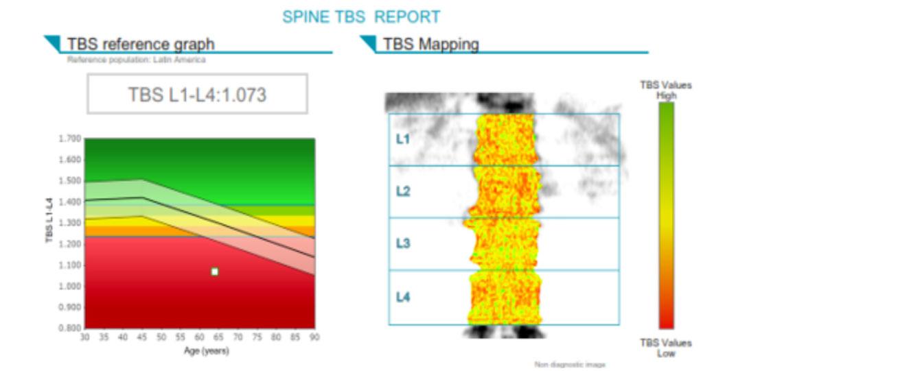 TBS & Patient Management - Medimaps Case Study 1 - Low TBS value