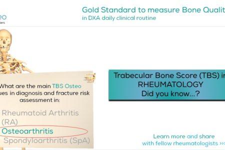 TBS Osteo - Osteoporosis in Rheumatology in Osteoarthritis