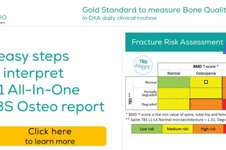 Trabecular Bone Score (TBS) - Fracture risk Assesment in Osteoporosis