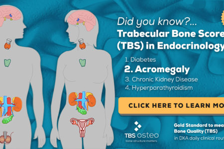 TBS Osteo - Trabecular Bone Score in Endocrinology (Acromegaly)